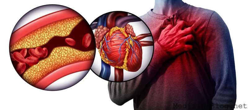 Cholesterin Gefahr