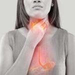 Sauer aufstoßen, Magenschmerzen, Sodbrennen: Ursachen, Maßnahmen und Mittel rund um Reflux
