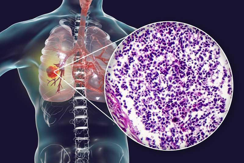 Stadium Lungenkrebs