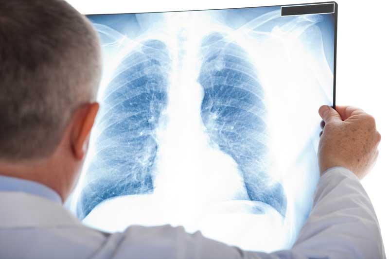 Diagnose Lungenkarzinom