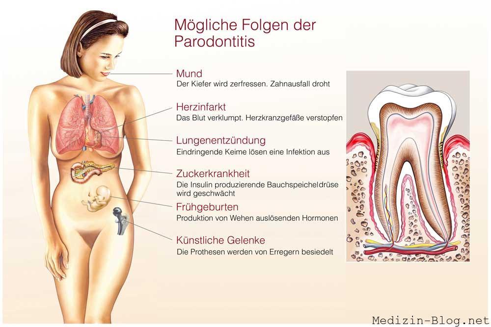 Folgen einer Parodontitis