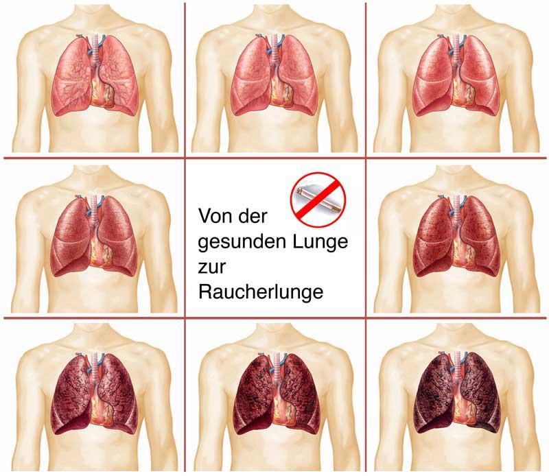 von der gesunden Lunge zur Raucherlunge