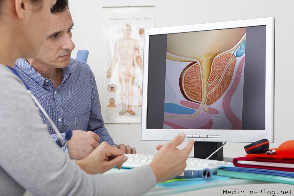 Prostata untersuchtung