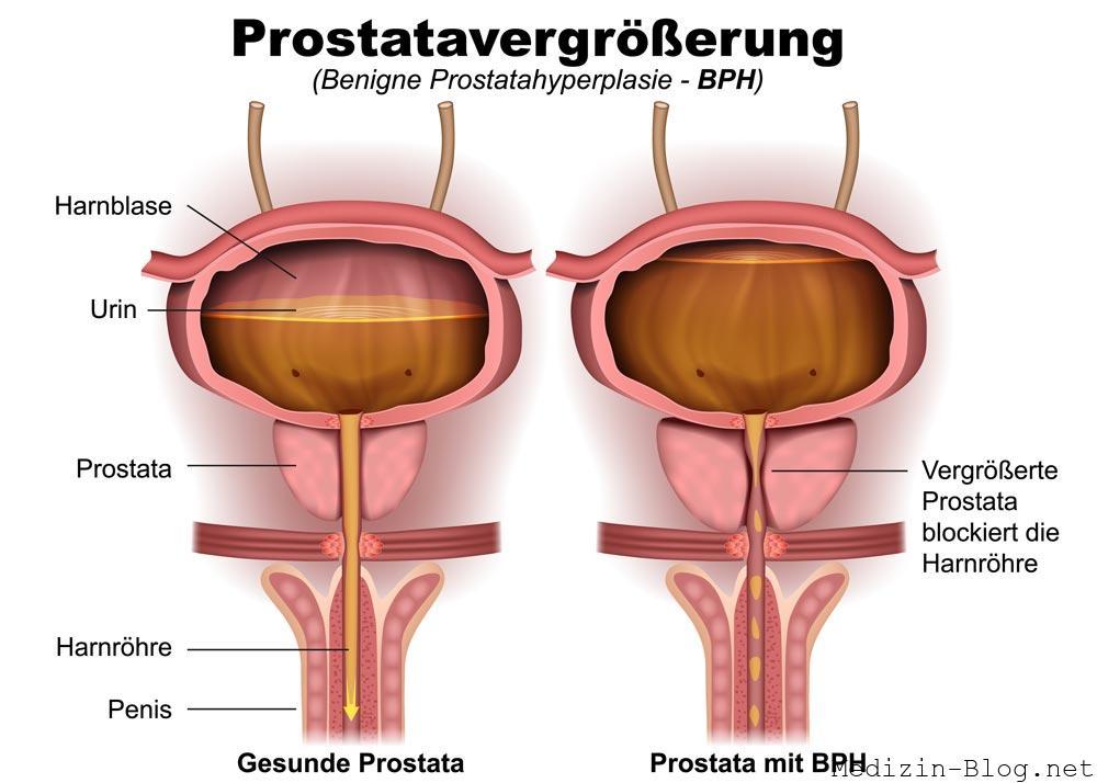 prostatavergroesserung